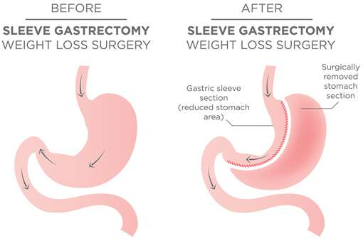 Gastric Sleeve Newcastle